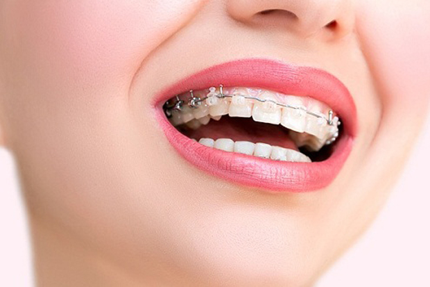 Kết quả hình ảnh cho niềng răng chúng vẫn có những sự khác